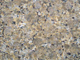 Granite Colour: Butterfly Yellow